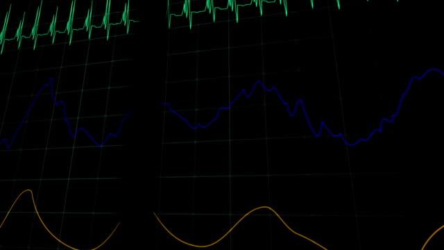 Simulation-der-Herzfrequenz-medizinische-Maschine