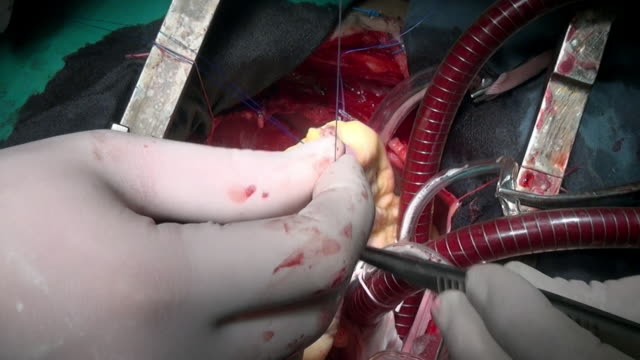 Heart-with-atraumatic-suture-material-surgical-thread-during-operation-