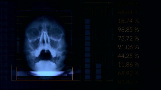 Scannen-eines-menschlichen-Schädels-geloopt-blau-hud-Schnittstelle-Medizintechnik