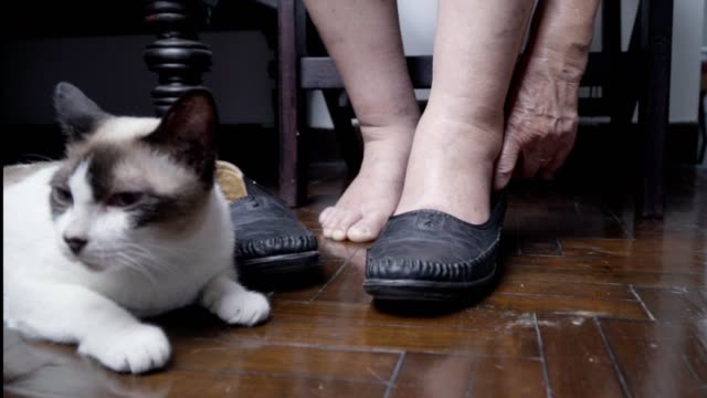 Elderly-woman-swollen-feet-putting-on-shoes-at-home