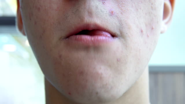 A-young-man-with-pimples-on-his-face-eats-french-fries-