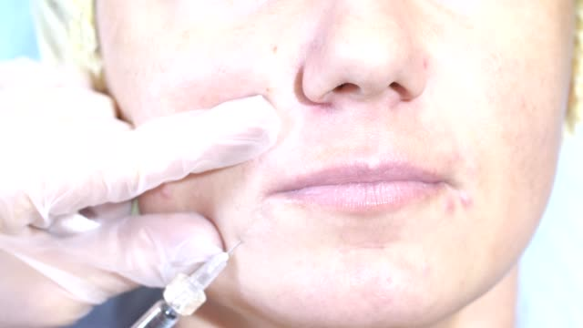 woman-getting-injection-face-receiving-facial-treatment-clinic-plastic-surgery-fillers-syringe-injector-procedure