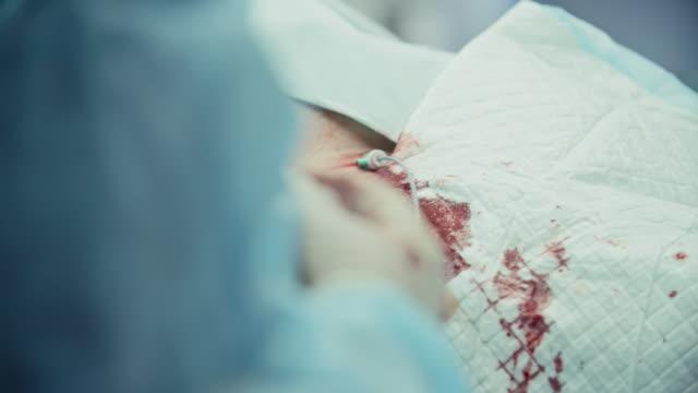 Coronary-Bypass-Surgery