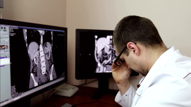 4K-The-tired-doctor-took-off-his-glasses-while-sitting-at-the-monitors-with-an-X-ray-examination-