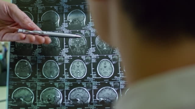 Doctor-Explaining-CT-Scan-of-Brain