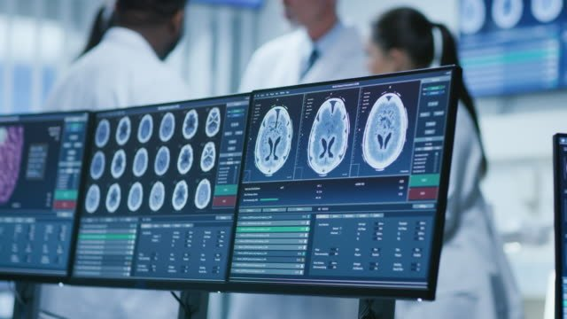 Computer-Screen-Showing-MRI-CT-Image-Scan-of-the-Brain-In-the-Background-Meeting-of-the-Team-of-Medical-Scientists-in-the-Brain-Research-Laboratory-Neurologists-/-Neuroscientists-Having-Analytical-Discussion-
