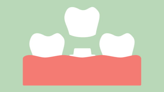 dental-crown-installation-process-and-change-of-teeth