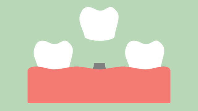 dental-implant-installation-process-and-change-of-teeth