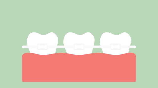 orthodontic-teeth-or-dental-braces