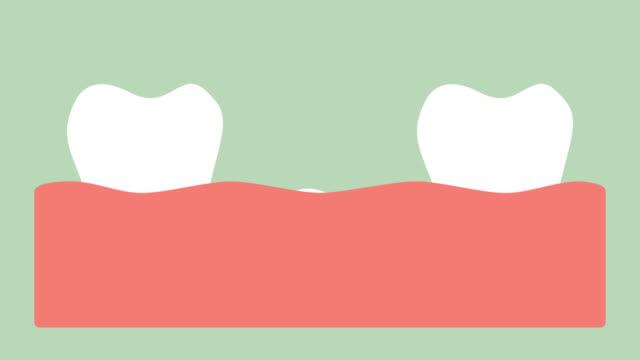 spacing-teeth-(-diastema-)-space-between-tooth-in-mouth