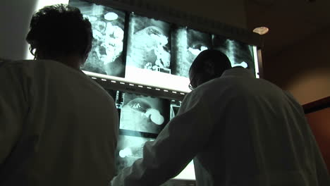 Medical-professionals-evaluate-xrays-on-a-wall-light-box