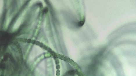 Microscopic-view-of-algae-like-a-necklace-of-green-bead