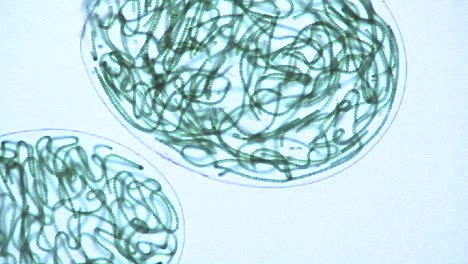 Microscopic-view-of-sacks-or-bubbles-containing-chains-of-blue-green-algae