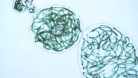 Microscopic-view-of-sacks-or-bubbles-containing-chains-of-blue-green-algae-1