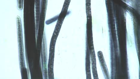 Microscopic-view-of-Phormidium-blue-green-algae-1