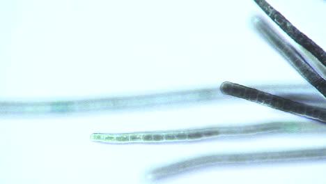 Microscopic-view-of-Phormidium-blue-green-algae-2
