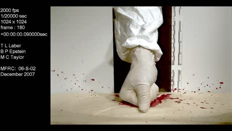 A-Forensics-Crime-Lab-Studies-A-Slow-Motion-Blood-Splatter-Caused-By-A-Punch-With-A-Fist