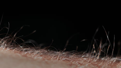 Small-hairs-rise-on-man-s-hand-caused-by-fear